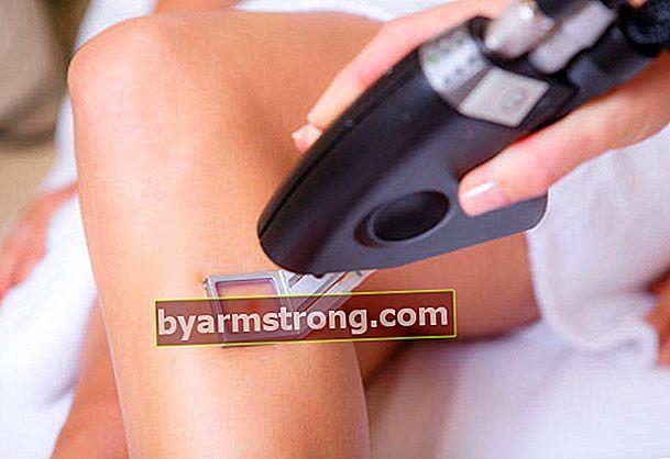 Avviso sull'epilazione laser da parte di esperti