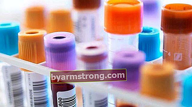 赤血球とは何ですか? Rbcいくつあるべきですか?高低の原因