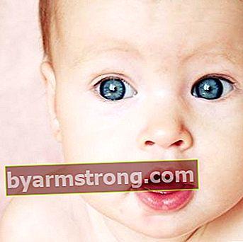 Mata berair pada bayi bisa menjadi tanda penyakit