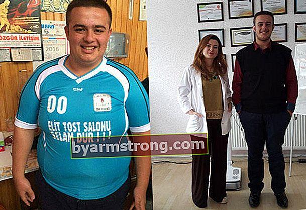 Dia kehilangan 48 kg dalam 7 bulan tanpa operasi