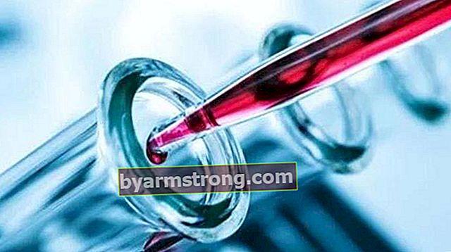 Apakah Hormon Prl (Prolaktin)? Berapa Banyak Harus Prl? Punca Tinggi dan Rendah
