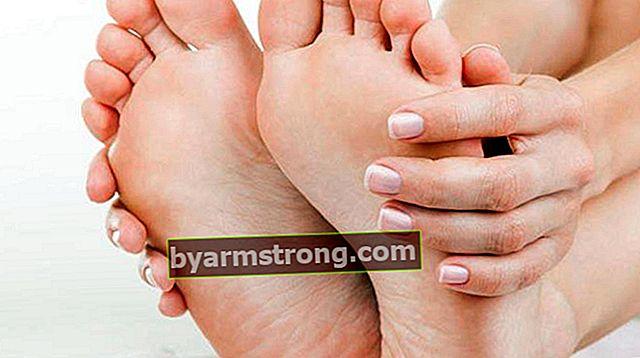 발 통증으로 가야 할 섹션은 무엇입니까? 발 작열감과 부종에 대해 어떤 의사를 예약해야합니까?