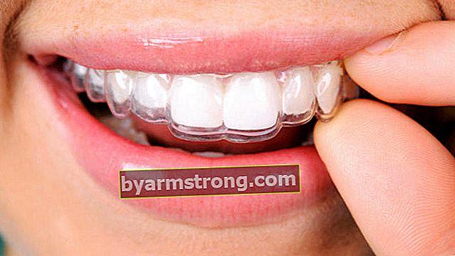 歯列矯正とは何ですか、それは何を見ていますか?歯科矯正科の医師(歯科矯正医)はどのような病気を探していますか?