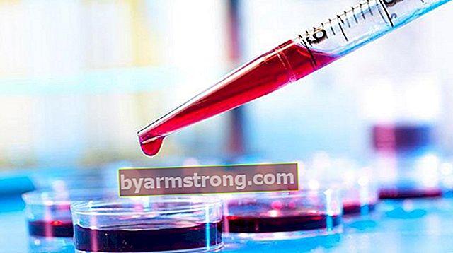 動脈血ガスSo2とは何ですか?いくつあるべきですか?高低の原因
