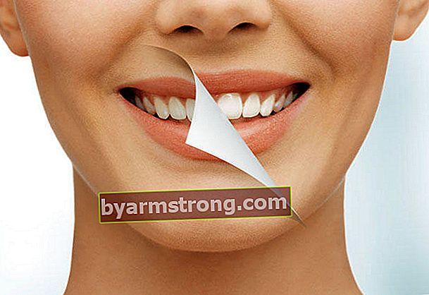 Apa yang harus dilakukan untuk gigi yang sihat?