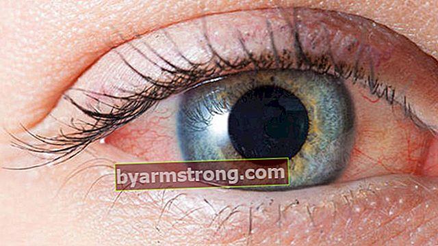 何が目を潤す原因ですか、その理由は何ですか?涙には何がいいですか?目を潤すためのハーブトリートメント