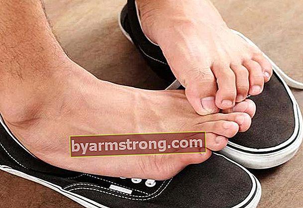 Soluzioni esatte per l'odore dei piedi