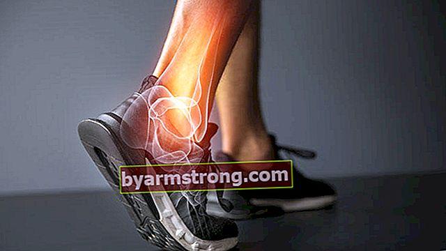 Presta attenzione alle cause del dolore al tallone e alla caviglia!