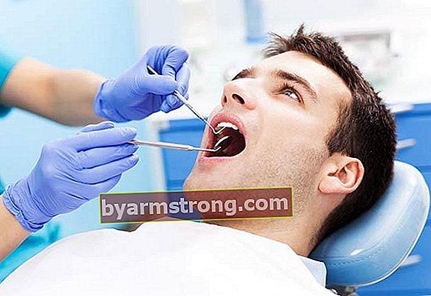La limatura danneggia i denti?