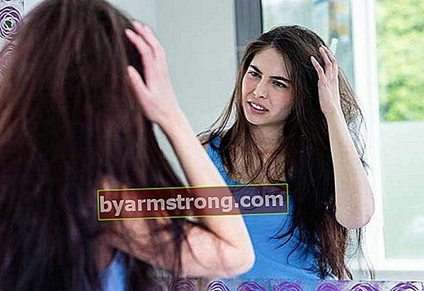 Cos'è la febbre dei capelli? Quali sono i sintomi?
