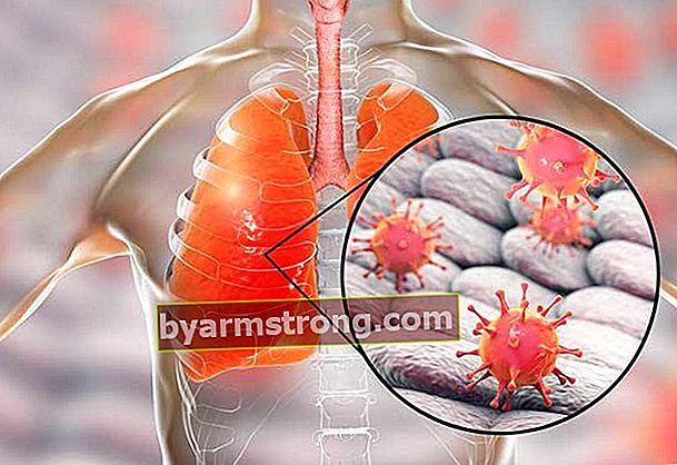 ไวรัส H1N1 คืออะไร?